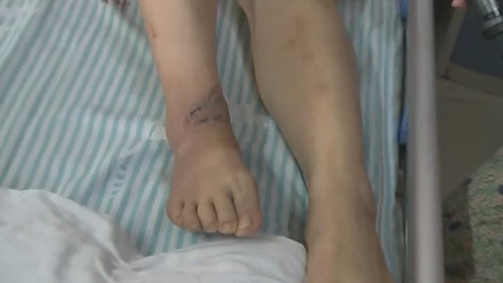医院做妇科手术仪器电线搭患者脚踝致严重烫伤 院方:疏忽所致