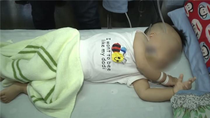 一岁宝宝误吞枣核致肠穿孔,医院紧急手术治疗