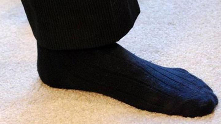 """肺得""""脚气""""!男子下班后爱闻自己的臭袜子,致肺部真菌感染"""