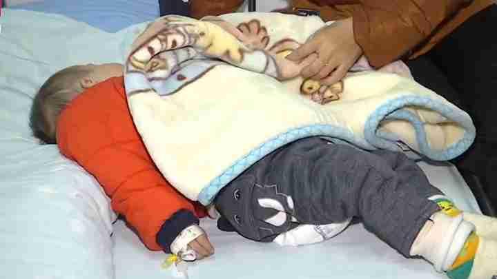 险!1岁男童突然呼吸急促 送医后检查竟是西瓜子卡喉