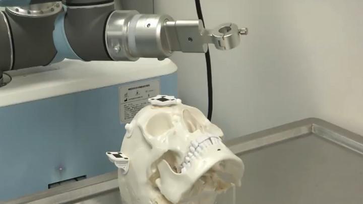 给力!我国独立自主研发机器人助力神经外科手术